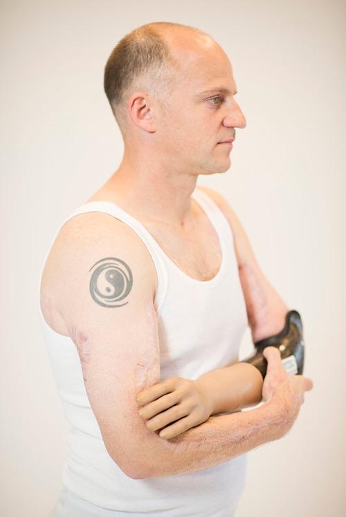 2016/11/09 brussel belgium : portretten voor music for life : bjorn heeft motorongeluk gehad foto ivan